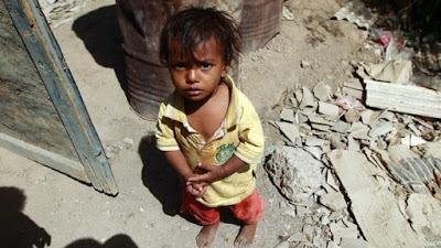 Photo of Breaking: Yemen faces world's biggest famine