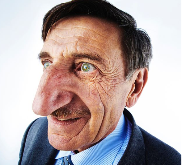 MAN WITH THE LONGEST NOSE IN THE WORLD