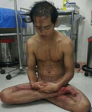 Photo of Thai man cuts his own manhood out of excitement from watching porn