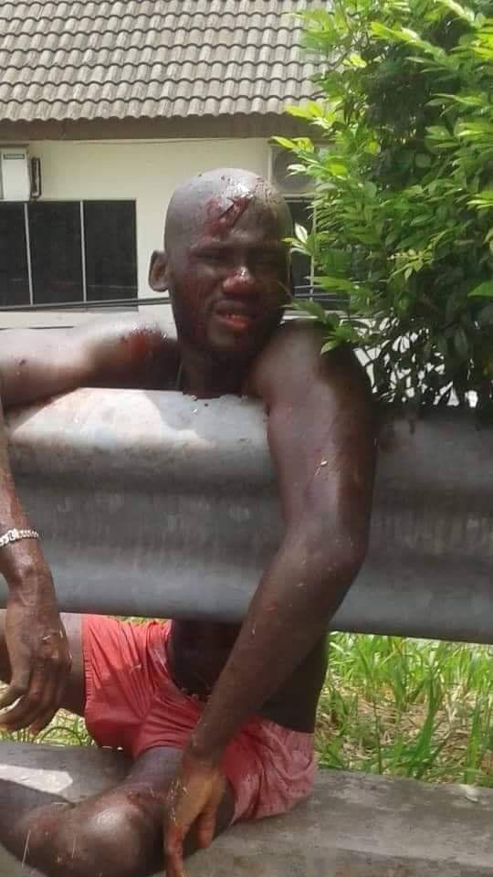 Nigerian man severely injured after he jumped from storey building while trying to evade police In Malaysia