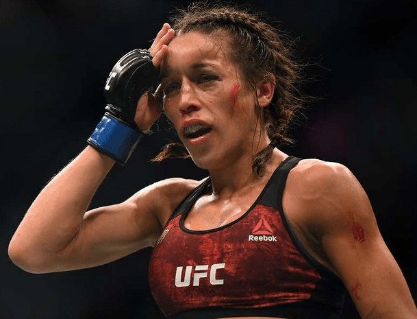 Photo of UFC fighter Joanna Jedrzejczyk's face left disfigured after savage defeat by Weili Zhang at UFC 248